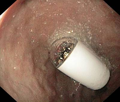Time Capsule Photograph - Capsule Endoscope In The Duodenal Bulb by Gastrolab