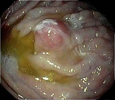 Endoscope View Photograph - Carcinoid Tumour In The Stomach by Gastrolab