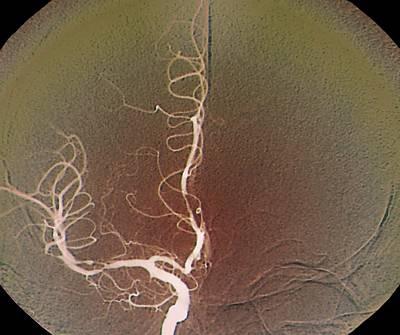 Cerebral Vasculitis, X-ray Art Print by Zephyr