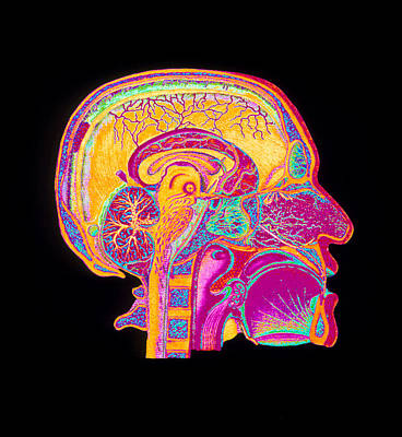 Coloured Illustration Of Sectioned Brain In Head Art Print by Mehau Kulyk