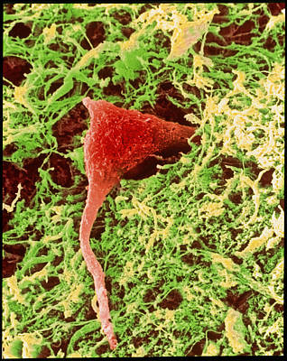 Coloured Sem Of A Nerve Cell In Brain Tissue Art Print by Steve Gschmeissner