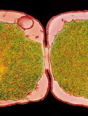 Binary Fission Photograph - Coloured Tem Of E. Coli Bacteria Dividing by Dr Kari Lounatmaa