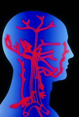 Computer Graphic Of Head & Neck, Showing Arteries Art Print by Pasieka