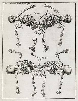 Conjoined Twin Skeletons, 18th Century Art Print by Middle Temple Library