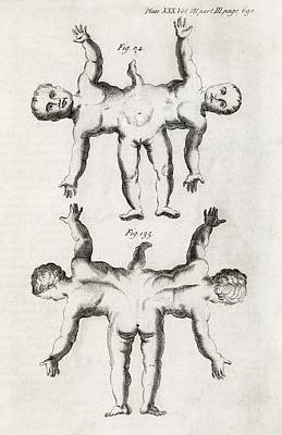 Conjoined Twins, 18th Century Art Print by Middle Temple Library