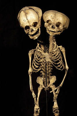Conjoined Photograph - Conjoined Twins by Arno Massee