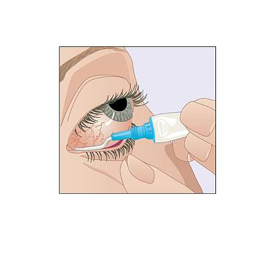 Bloodshot Photograph - Conjunctivitis Treatment, Artwork by Peter Gardiner