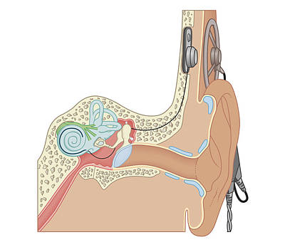 Inner Part Digital Art - Cross Section Biomedical Illustration Of Cochlear Implants by Dorling Kindersley