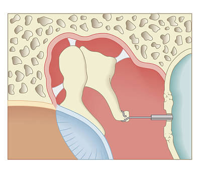 Listening Digital Art - Cross Section Biomedical Illustration Of Post-operative Stapedotomy Surgery by Dorling Kindersley