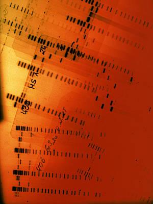 Dna Fingerprint Autoradiograms Art Print by Volker Steger