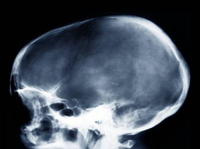 Dolichocephalic Skull Deformity, X-ray Art Print by Zephyr