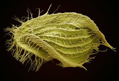 Euplotes Ciliate Protozoan, Sem Print by Steve Gschmeissner