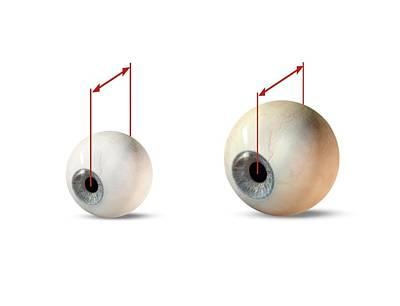 Eye Size Comparison, Artwork Print by Claus Lunau