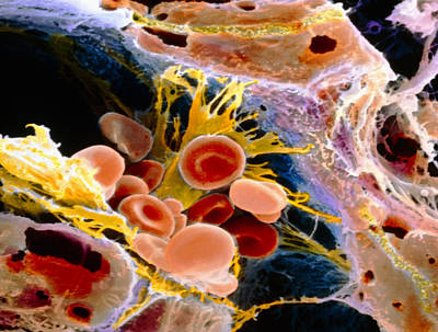 F. Colour Sem Of Macrophage & Blood Cells In Liver Art Print by Prof. P. Mottadept. Of Anatomyuniversity \la Sapienza\, Rome