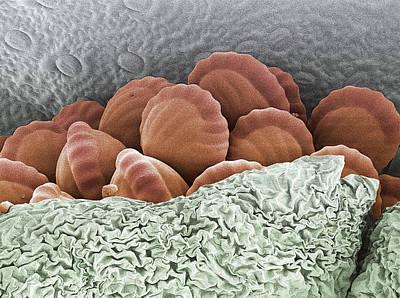 Pteridophyte Photograph - Fern Spores, Sem by Steve Gschmeissner