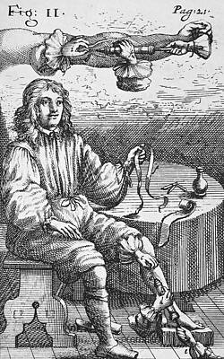 First Intravenous Injection, 17th Century Art Print