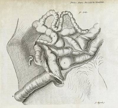 Le Cat Photograph - Fistula And Hernia, 18th Century by Middle Temple Library