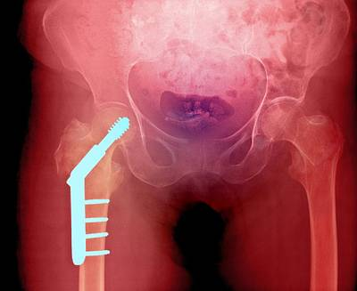 Fixed Hip And Fracture (image 1 Of 2) Art Print by Du Cane Medical Imaging Ltd