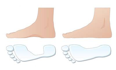 Flat Foot Comparison, Artwork Art Print by Peter Gardiner