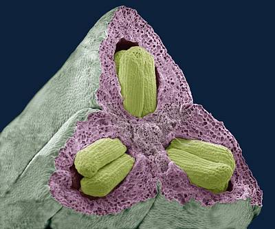 Ovule Photograph - Flower Ovary And Ovules, Sem by Steve Gschmeissner