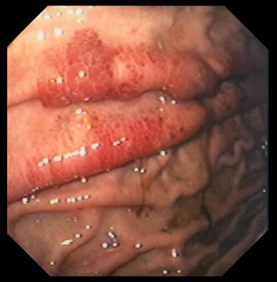 Gastritis In Aids Art Print