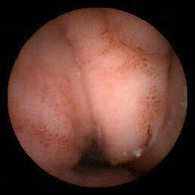 Gastritis, Pill Camera View Art Print