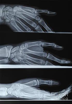 Hand X-ray Art Print by Sami Sarkis