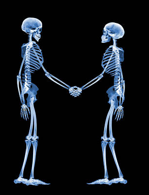 X-ray Image Photograph - Handshake, X-ray by D. Roberts