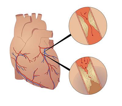 Pump Organ Photograph - Heart Disease by Peter Gardiner