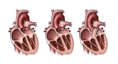 Heart Valves, Artwork Art Print