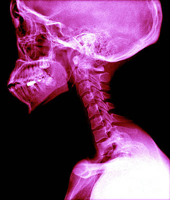 Photograph - Human Skull And Spine by Medical Body Scans