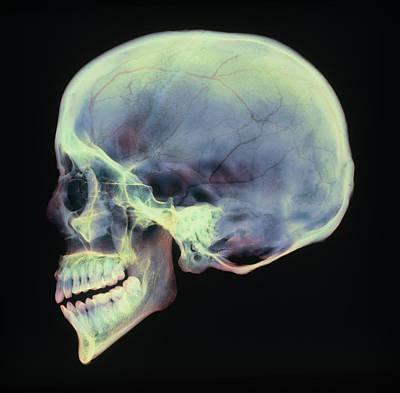 Human Skull, X-ray Art Print by D. Roberts