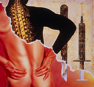 Illustration Of Back Pain Art Print by David Gifford