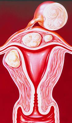 Illustration Of Fibroids In The Uterus Art Print by John Bavosi