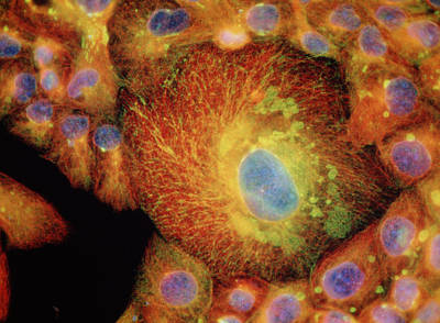 Immunofluores. Lm Of Drug-resistant Cancer Cells Art Print by Nancy Kedersha