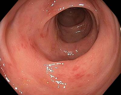 Inflamed Wall Photograph - Inflamed Colon From Viral Gastroenteritis by Gastrolab