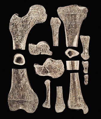 Inner Structure Of Bones Art Print
