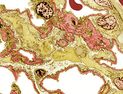 Kidney Disease, Tem Art Print by Steve Gschmeissner