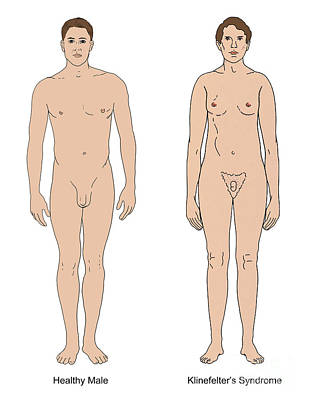 Klinefelters Syndrome & Healthy Male Art Print by Science Source