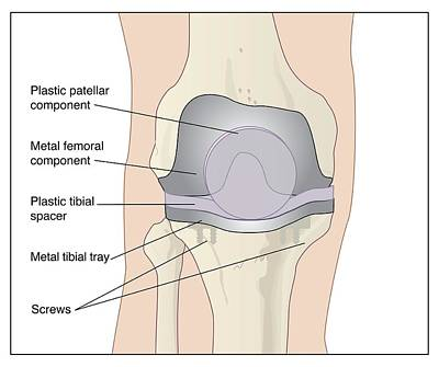Total Knee Replacement Photograph - Knee After Knee Replacement, Artwork by Peter Gardiner