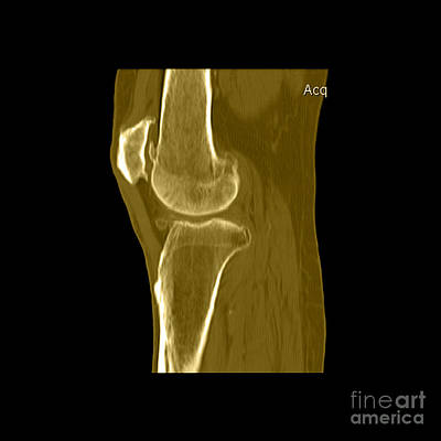 Medical Scan Photograph - Knee Showing Osteoporosis by Medical Body Scans
