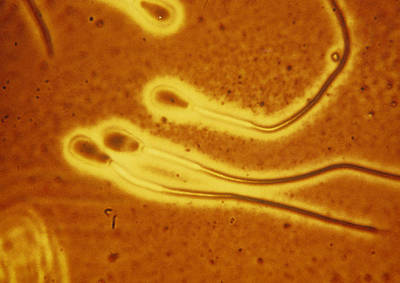 Light Micrograph Of Sperm From A Bull Art Print by Dr T E Thompson