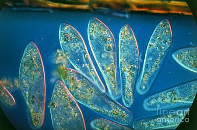 Lm Of A Group Of Paramecium Caudatum Art Print by Eric Grave