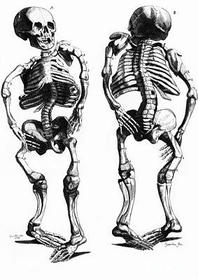 Photograph - Malformed Skeletons by Science Source