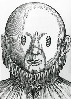 Photograph - Mask For Correcting Crossed Eyes 1583 by Science Source