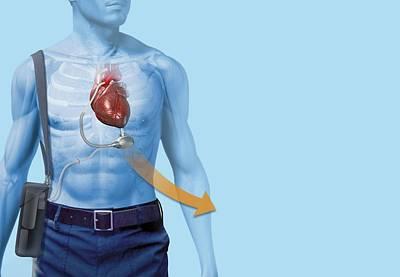 Pump Organ Photograph - Mechanical Heart Pump, Artwork by Henning Dalhoff