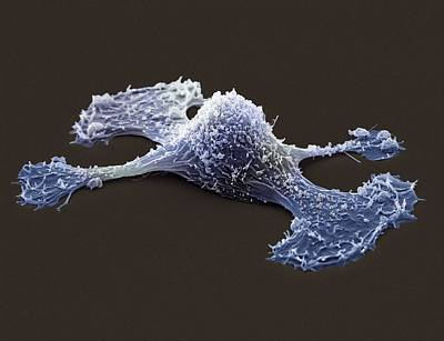 Metastasis Of A Cancerous Cell, Sem Art Print