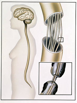 Fibre Art Photograph - Multiple Sclerosis by John Bavosi