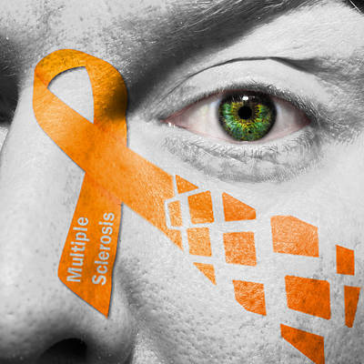 Photograph - Multiple Sclerosis Ms by Semmick Photo