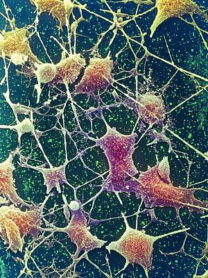 Nerve Cells, Sem Art Print by Steve Gschmeissner